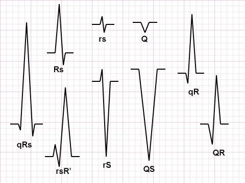 انواع حالات کمپلکس QRS