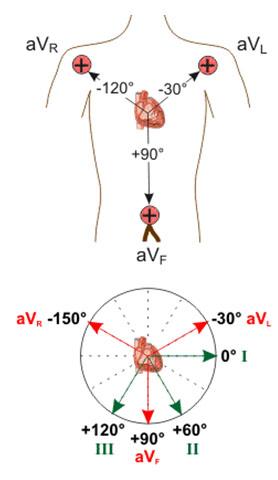 محل قرار گیری لیدهای تک قطبی در بدن