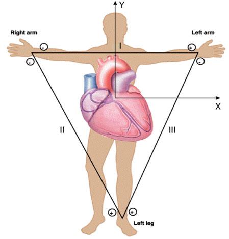 محل قرار گیری لیدهای دو قطبی در بدن