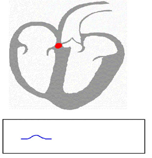 تمرکز سیگنال در گره ی Av و تشکیل بازه یPR